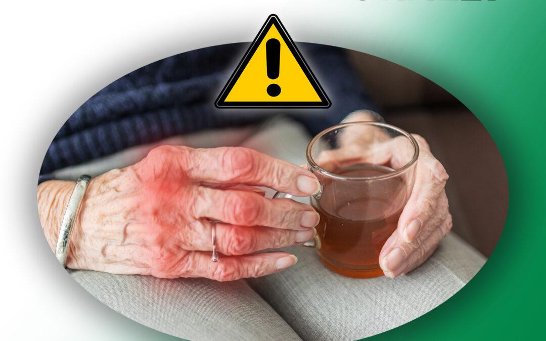 How to Treat Arthritis Naturally