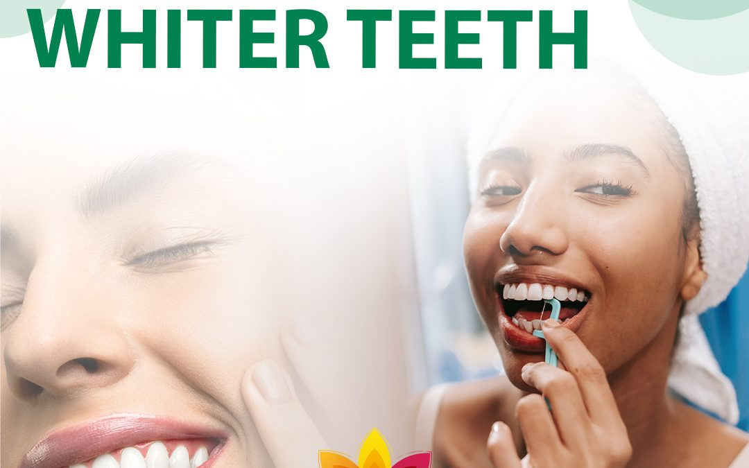 How to Get Naturally Whiter Teeth (In 5 Steps) at Home